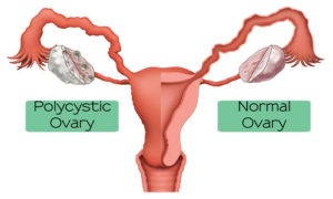 Polycytic-ovary-syndrome